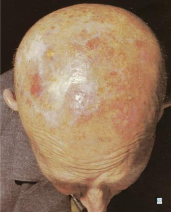 Kératose Actinique sur le scalp