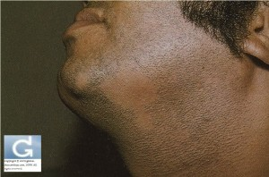 Alopecia Areata (beard area)