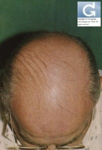 Androgenetic Alopecia (or common balding) stage VI (according to the classification of Hamilton)