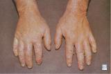 Chronic contact eczema (dermatitis) of the hands