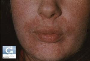 Dermite périorale