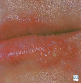 Herpes de la lèvre (bouton de fièvre)