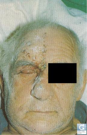 Shingles on the face