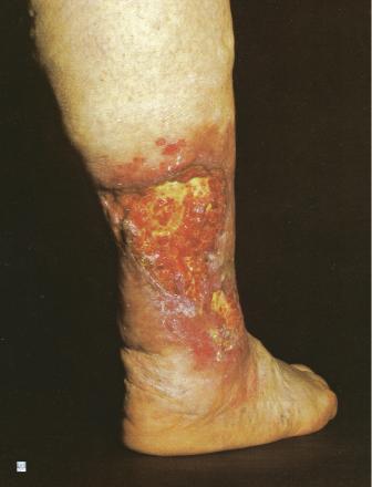 Ulcère de jambe veineux