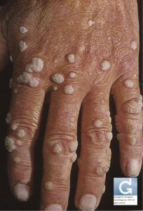 Multiples Viral Warts located on the Hands