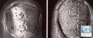Psoriasis de l'ongle (ungéal) avec dépressions ponctiformes et surface rugueuse