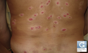Psoriasis répondant par le traitement par le laser excimer
