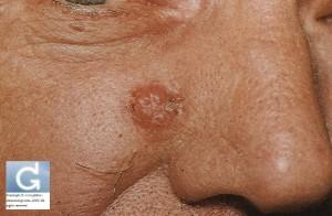 Carcinome Basocellulaire (CBC) (paranasal)