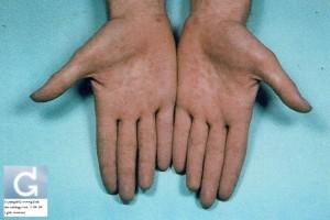 Syphilis secondaire localisée sur les paumes