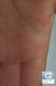 Gale: sillon au niveau de la paume de la main