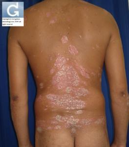 Psoriasis en plaque