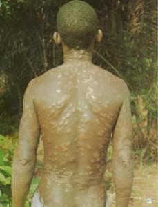 La lèpre (maladie de Hansen) Borderline avec faciès léonin