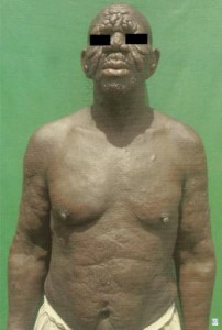 Lepromatous Leprosy (Hansen's Disease) with Leonine Facies