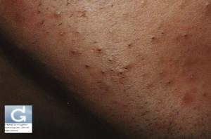 Lésions de l'acné rétentionnelle: comédons ouverts et fermés (points blancs et points noirs)