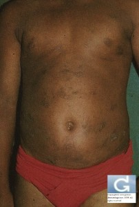 A hiperpigmentação pós-inflamatória (após um eczema)