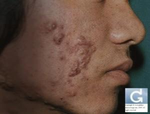 Acné inflammatoire sévère avec formation de kystes (Nodulo kystique)