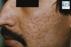 Cicatrices d'Acné atrophiques (