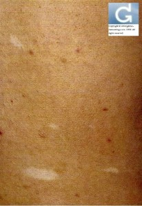 Sclérose Tubéreuse de Bourneville: aspect en feuille de sorbier