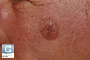 Basal Cell Carcinoma on the cheek