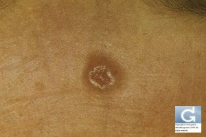 Basal Cell Carcinoma on the forehead