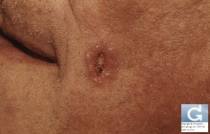 Basal Cell Carcinoma presenting as a non healing wound