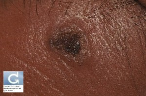 Pigmented Basal Cell Carcinoma in an Asian Patient