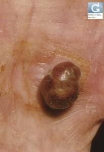 Botriomycome ou Granulome Pyogénique (hémangiome capillaire lobulaire)