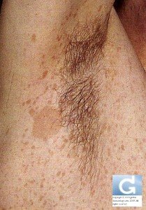 Neurofibromatose: Signe de Crowe (lentignose axillaire