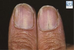 Streifen auf den Nägeln in Längsrichtung (Darier'scher Krankheit)