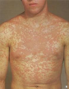 麻疹様薬疹