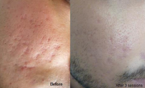 Acne scars microneedling: before and after